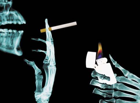 Incidência do câncer de rim na mulher e o tabagismo