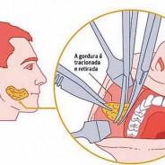 Removendo gordura da face