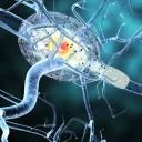 Sintomas neurológicos alertam para diagnóstico da esclerose múltipla