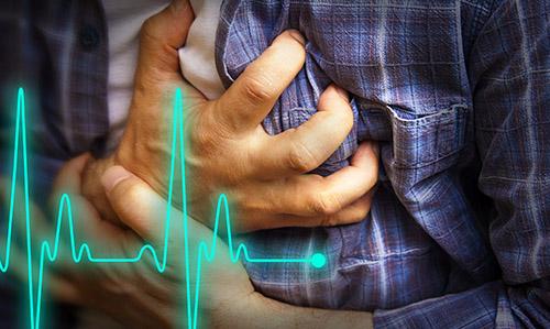 Campanha visa reduzir mortes por parada cardíaca no Brasil