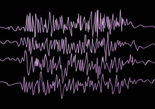 Pacientes com epilepsia refratária